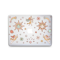 The Lovers - MacBook Case