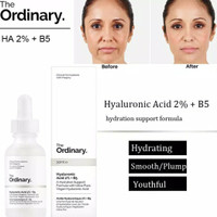 the ordinary hyaluronic acid 2% b5