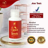 Acne Toner SR12/Untuk kulit berjerawat
