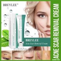 BREYLEE Acne Scar Removal Cream Keloid Jerawat penghilang bekas luka