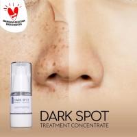 Ertos Dark Spot Treatment Concentrate Serum - Skincare Original BPOM