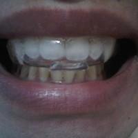 pemutih gigi home bleaching whitening gel bukan whitelight white light