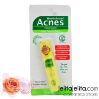 Acnes Point Clear Roll On / Penghilang Jerawat / Cream / Obat Jerawat