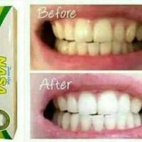 Pasta Gigi Nasa / PGN pemutih gigi