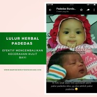 PADEDAS OFFICIAL BABY'S SKIN WHITENING AND CARE