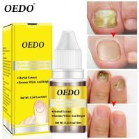 Herbal Antibacterial Nail Treatments Essential Oil Herbal Extract