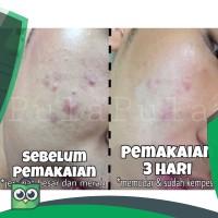 Oxy 10 - Jerawat kempes dlm 1 malam!- Oxy 10 (25gr) oxy10 - JAMINAN