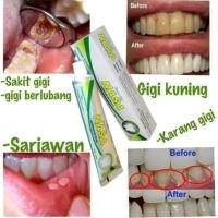 Terbaru Solusi Untuk Masalah Gigi Dan Gusi Pgn Pasta Gigi Nasa