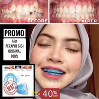 kawat gigi orTrainer Alignment Orthodontic Retainer Alat Perapih Gigi
