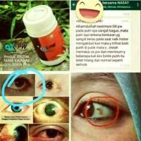 Jual OX-PW Herbal Nasa Original / Obat Mata Herbal / Special Mata