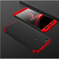XIAOMI NOTE 5A PRIME Full Cover Armor Baby Skin Hard Case