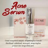 Acne Serum MS GLOW /Acne Clearing Treatmen Serum - Original