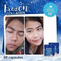 Frozen Collagen 2 In 1 Hilangkan Jerawat Kulit Wajah Putih Dan Kencang