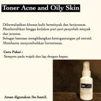 toner acne dan oily berminyak dan berjerawat kulit wajah aman ori