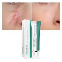 BREYLEE Acne Scar Removal Cream Skin Repair Scar Acne Treatment Remove
