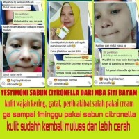 Hot Produk Bidoyi Citronella Sabun Kecantikan & Kesehatan Original Tbk