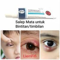 Terramycin Salep Mata Timbilan 3.5 gr