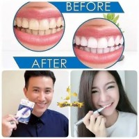 Paling Murah Super White Pemutih Gigi Pen Pemutih Gigi Teeth Whitening