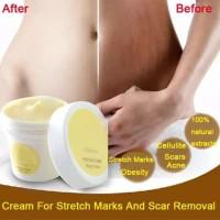 Krim Lotion Anti Stretch Mark / Obesitas untuk Perawatan Tubuh