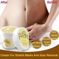 Terbaik Krim Lotion Anti Stretch Mark / Obesitas untuk Perawatan