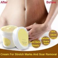 Borong Krim Lotion Anti Stretch Mark / Obesitas untuk Perawatan