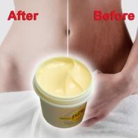 Unik Krim Lotion Anti Stretch Mark / Obesitas untuk Perawatan Tubuh