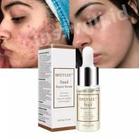 BREYLEE Serum Anti-Acne Rejuvenation untuk jerawat