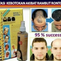 Obat Penumbuh Rambut Botak Ampuh - Hair Tonicum Spray