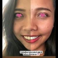 Best Seller Beautylab.Inc Super White   Teeth Whitening Kit   Pemutih