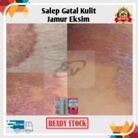 Salep KL/HL Pi Kang Wang Obat Gatal Gatel Eksim Jerawat Jamur