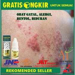 Obat Alergi, Bentol, Gatal, Biduran Bagus dengan Propolis SM Original
