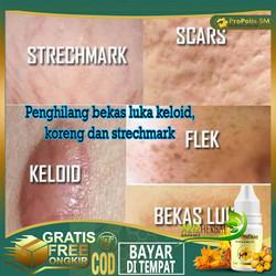 Obat Penghilang Bekas Luka, Flek, Keloid,scars,strechmark Propolis sm