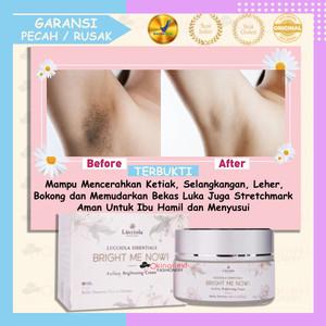 Info Ever White Smooth Axillary Cream Krim Whitening Pemutih Ketek Lipatan Katalog.or.id