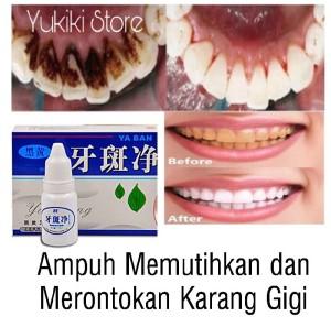 Harga pemutih gigi penghilang plak karang gigi memutihkan gigi | HARGALOKA.COM