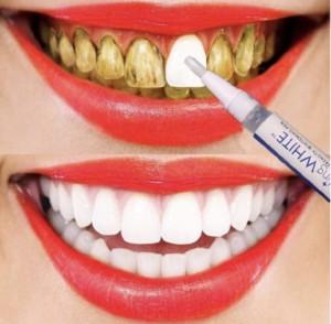 Harga pemutih gigi instan membersihkan karang gigi pemutih gigi | HARGALOKA.COM
