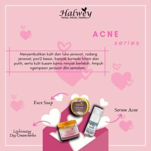 Harga paket kecantikan paket skincare anti acne anti jerawat by | HARGALOKA.COM