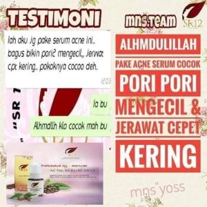 Harga serum acne original sr12 untuk kulit | HARGALOKA.COM