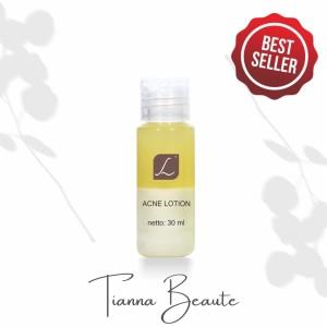 Harga larissa acne lotion perawatan wajah | HARGALOKA.COM