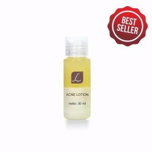 Harga larissa acne lotion obat jerawat | HARGALOKA.COM
