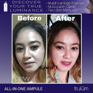 Harga produk korea untuk penghilang bekas jerawat trulum pemutih wajah | HARGALOKA.COM