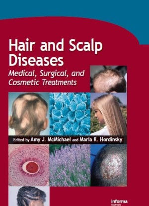 Harga e book hair and scalp diseases medical surgical and cosmetic | HARGALOKA.COM